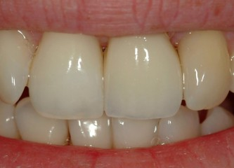 implant case 2